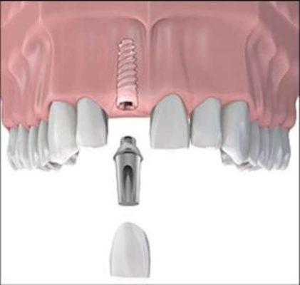 Cấy ghép trụ implant có ảnh hưởng sức khỏe không