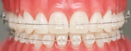 Chi phí niềng răng mắc cài tự đóng bao nhiêu tiền?