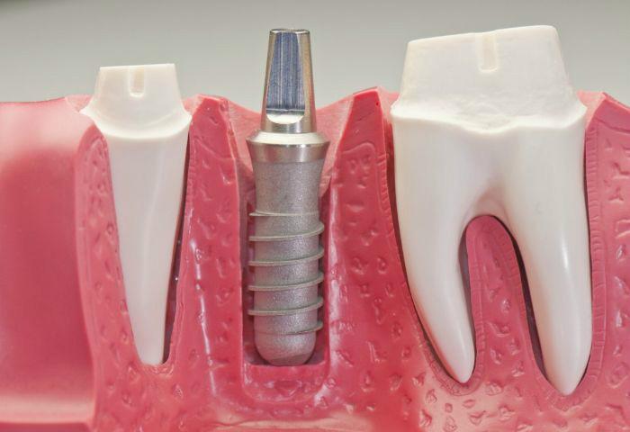 chi phí trồng răng vĩnh viễn