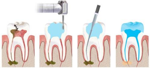 Dịch vụ chữa tủy răng tại trung tâm nha khoa