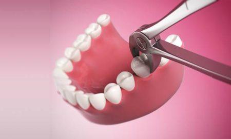 Nhổ răng hàm không đau tại nha khoa Đăng Lưu