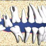 Nhổ răng số 8 ở đâu tốt?