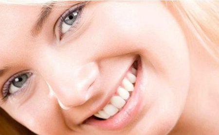 Niềng răng khểnh giá bao nhiêu?