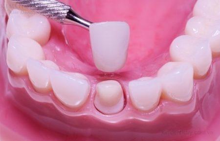 Răng đã lấy tủy có nên bọc sứ không?