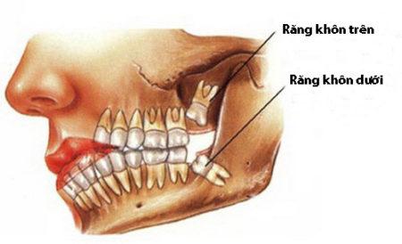Răng khôn là gì?
