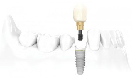 Trồng răng giả cố định giá bao nhiêu tiền?