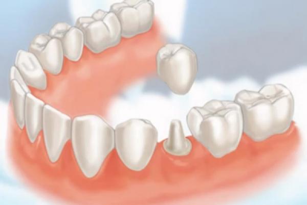 Dịch vụ trồng răng sứ ở đâu tốt tại tphcm?