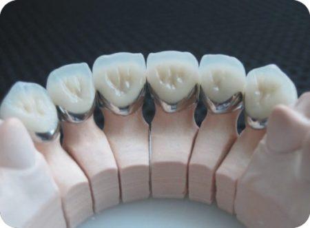 Ưu điểm của răng sứ toàn sứ