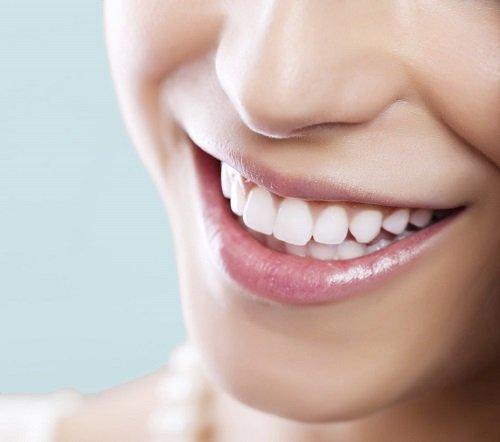Những tác hại của việc tẩy trắng răng thiếu kiến thức nha khoa 1