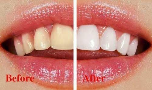 Những tác hại của việc tẩy trắng răng thiếu kiến thức nha khoa 2