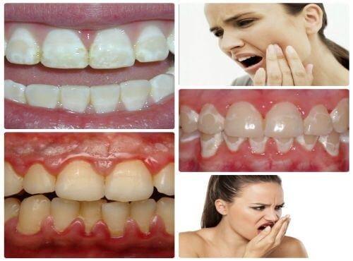 Những tác hại của việc tẩy trắng răng thiếu kiến thức nha khoa 3