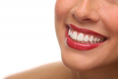 Bất ngờ từ kết quả tẩy trắng răng bằng than hoạt tính 1