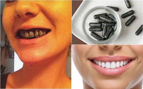 Bất ngờ từ kết quả tẩy trắng răng bằng than hoạt tính 3