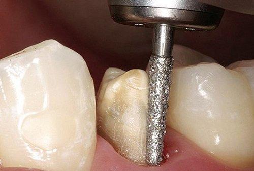 Răng sứ có bị sâu không? Khái quát ưu và nhược điểm răng sứ-2