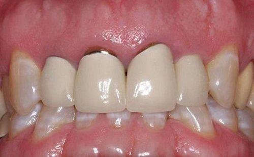 Răng sứ có bị sâu không? Khái quát ưu và nhược điểm răng sứ-3