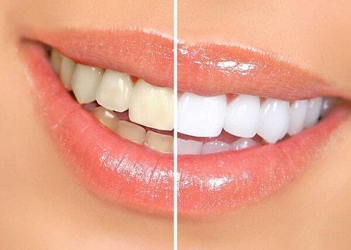 Răng sứ có bị xuống màu không? Tìm hiểu thông tin-1