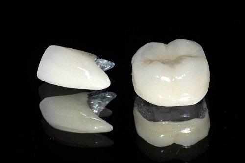 Răng sứ có bị xuống màu không? Tìm hiểu thông tin-3