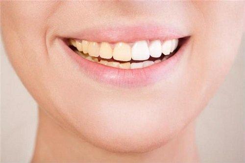 Răng sứ có bị xuống màu không? Tìm hiểu thông tin-4
