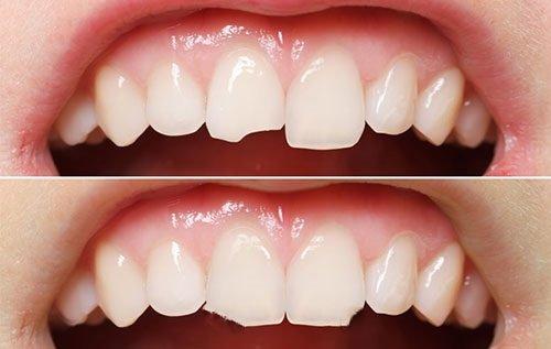Răng sứ có trám được không khi bị gãy vỡ?-1