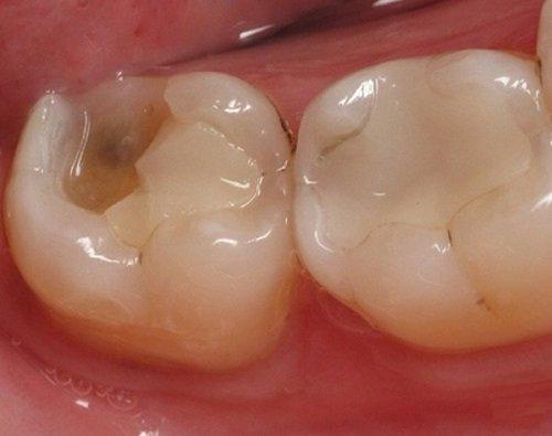 Răng sứ có trám được không khi bị gãy vỡ?-2