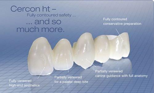 Răng sứ có trám được không khi bị gãy vỡ?-3