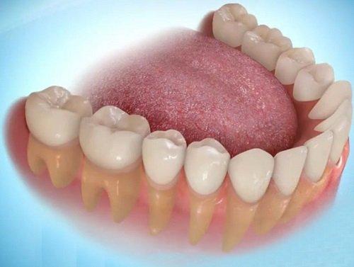 Trồng răng hàm có đau không? Giải đáp thắc mắc-1