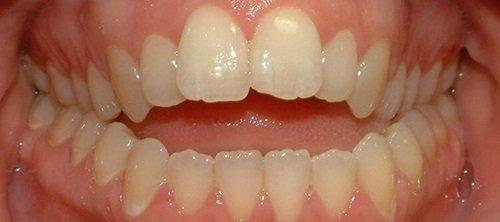 Niềng răng khớp cắn hở - Tìm hiểu khớp cắn hở là gì? 1