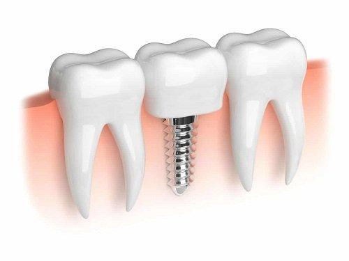 Trồng răng cấm hết bao nhiêu tiền? Chi phí có đắt không? 2