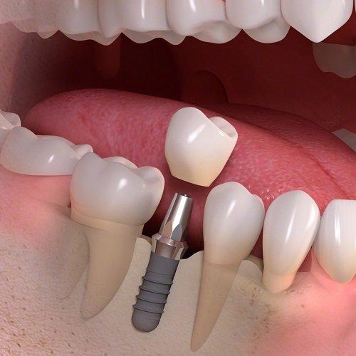 Trồng răng cấm hết bao nhiêu tiền? Chi phí có đắt không? 3