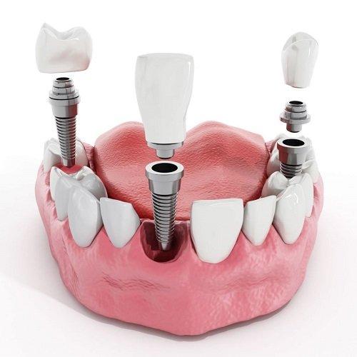 Trồng răng có ảnh hưởng gì không? Tìm hiểu về dịch vụ trồng răng 1