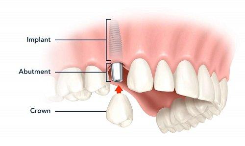 Trồng răng có ảnh hưởng gì không? Tìm hiểu về dịch vụ trồng răng 3