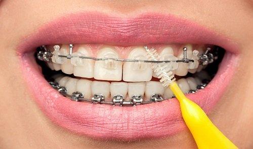 Có nên đi niềng răng không? Chuyên gia giải đáp thắc mắc 3