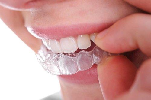 Niềng răng không mắc cài ở đâu tốt khu vực miền nam? 1