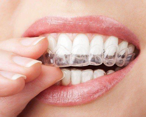 Niềng răng không mắc cài ở đâu tốt khu vực miền nam? 2