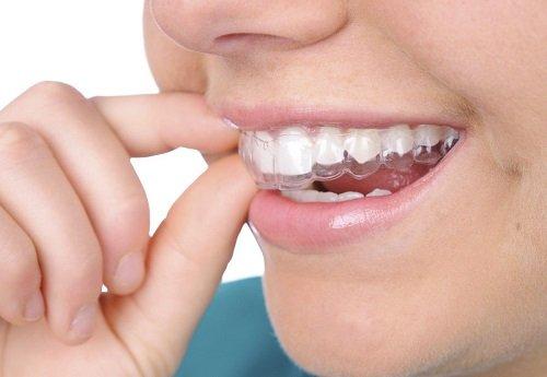 Niềng răng không mắc cài ở đâu tốt khu vực miền nam? 3