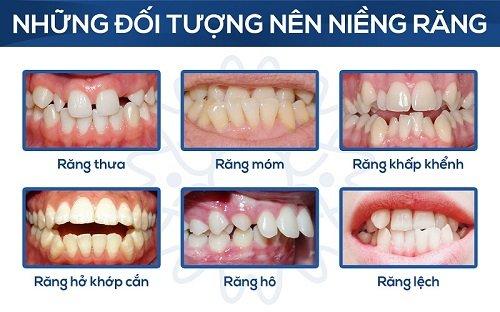 Niềng răng mắc cài pha lê - Tự tin chỉnh nha 1