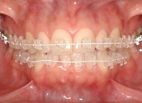 Niềng răng mắc cài pha lê - Tự tin chỉnh nha 2