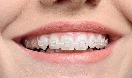 Niềng răng pha lê giá bao nhiêu? Chi phí hợp lý cho bạn 1