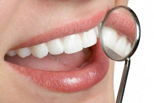 Niềng răng pha lê giá bao nhiêu? Chi phí hợp lý cho bạn 3