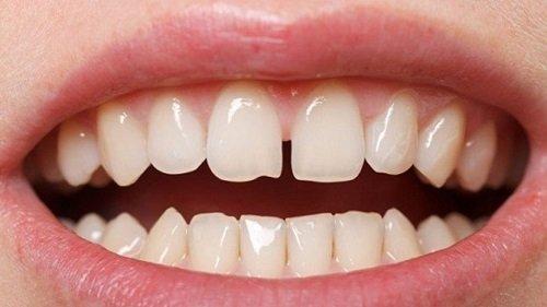 Niềng răng thưa có đau không? Lưu ý trước khi niềng răng 1