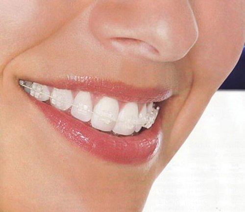 Niềng răng thưa có đau không? Lưu ý trước khi niềng răng 3