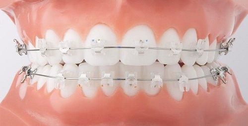 Niềng răng trẻ em giá bao nhiêu? Lưu ý khi niềng răng trẻ em 3