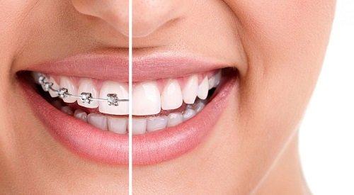 Ê buốt khi niềng răng - Nguyên nhân chính do đâu? 1