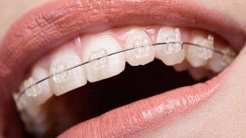 Ê buốt khi niềng răng - Nguyên nhân chính do đâu? 3