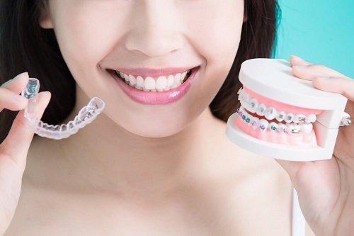 Làm răng sứ có niềng răng được không? Nha khoa trả lời 2