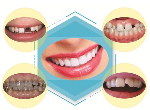 Làm răng sứ mất bao lâu thì hoàn thành? 2