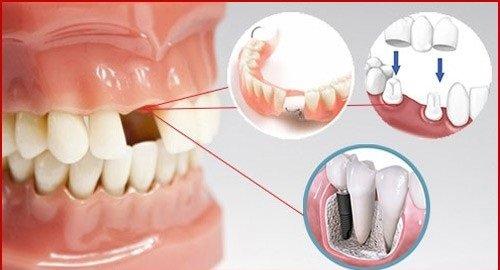 Làm răng sứ mất bao lâu thì hoàn thành? 3
