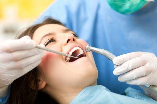 Làm răng sứ mất bao lâu thì hoàn thành? 4