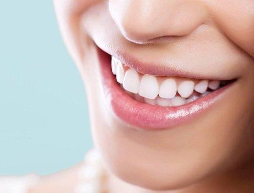 Làm răng sứ thẩm mỹ loại nào tốt nhất hiện nay? 3
