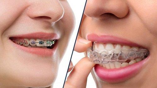 Niềng răng nhanh nhất bao lâu? Cần lưu ý gì khi niềng răng? 1